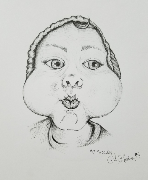 Inktober Day 17 Swollen ink drawing of boy with puffy cheeks by alecia goodman